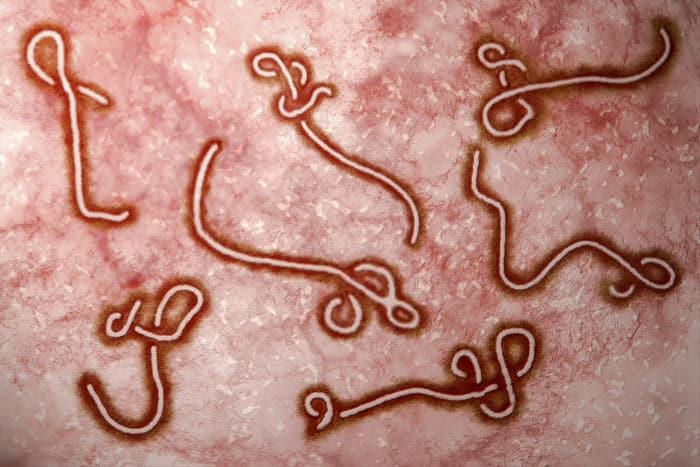 virus più pericoloso