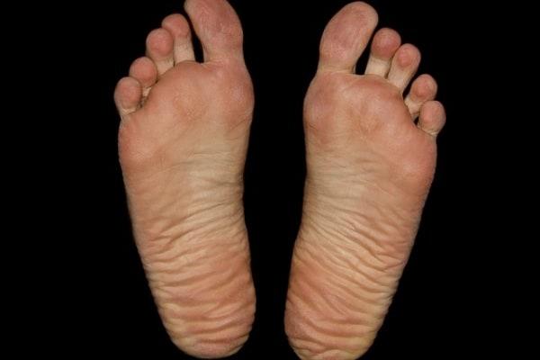 Lo sapevi che | Perché i piedi puzzano (di formaggio)?