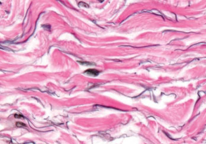 Ecco il nuovo organo del corpo umano: l'interstizio!